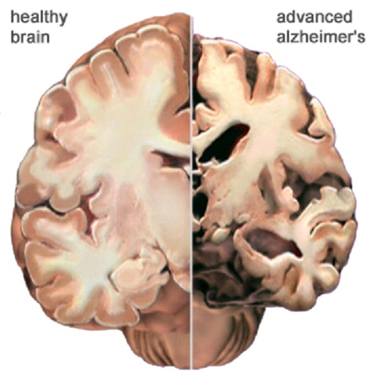 alzheimers changes brain functionality essay